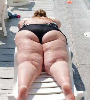 Fat Sun Bather
