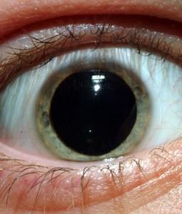 acid eye