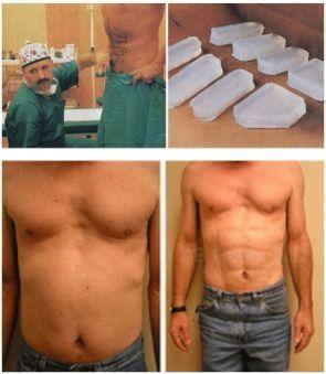 abdominal implants
