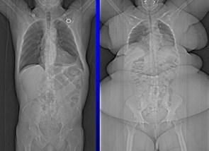 fat x-ray