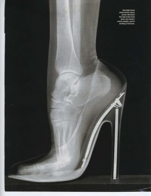 What a foot in a heel looks like