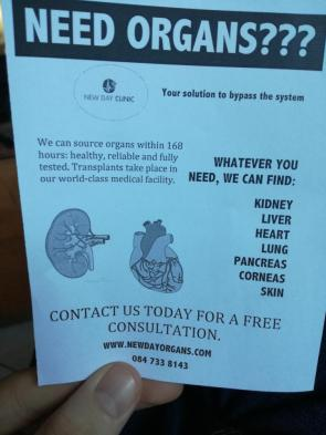 Need Organs