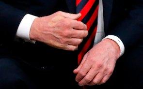 trump's crumpled hand