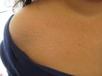 White ink tattoo