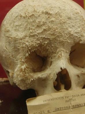 Skull Cancer