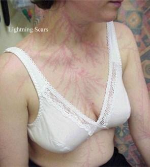 Lightning scars