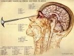 lobotomy diagram