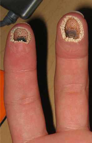 Lamprey disease
