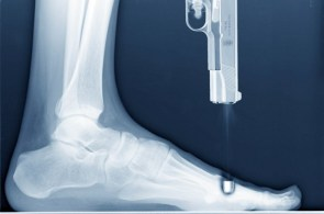 X Ray Shooting Self In Foot