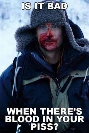 Bear Grylls got a problem