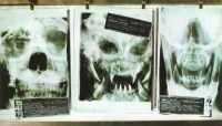 Predaline X-Rays – Scary Even for an X-Ray Technician!