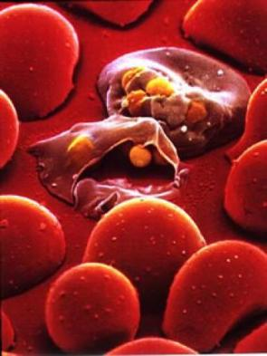 Malaria Invading Red Blood Cell