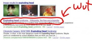 Exploding head are real?