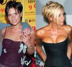 Victoria Beckham (Before & After)
