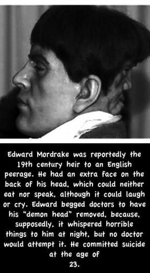 Poor Edward