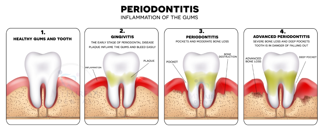 Periodontal Disease Therapy - My Fairfax Dental - Family, Cosmetic