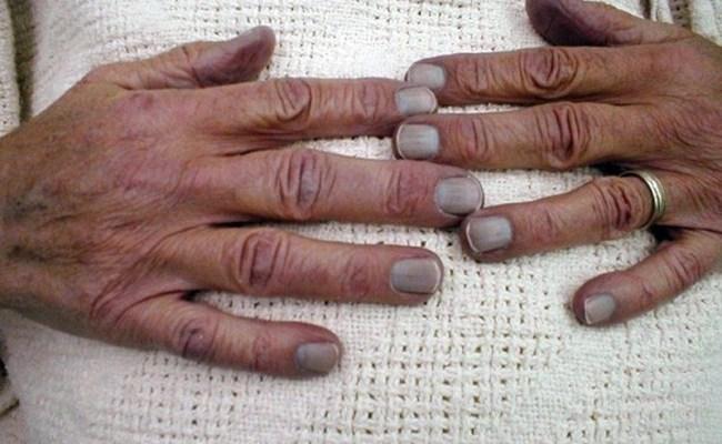 Blue Fingernails The Symptom Unpacked