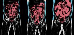 Health BodyScan