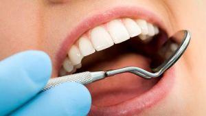 Çürüyen diş nasıl korunur
