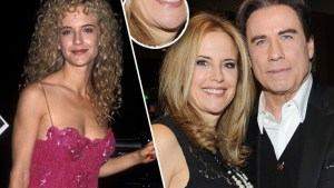 kelly-preston-chin-NETUESDAY thumbnail