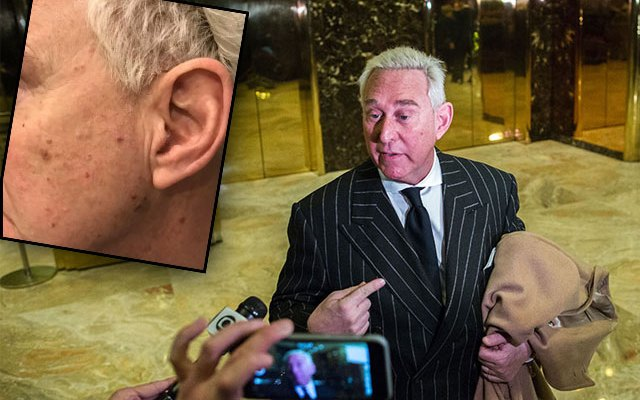 roger stone trump operative poisoned