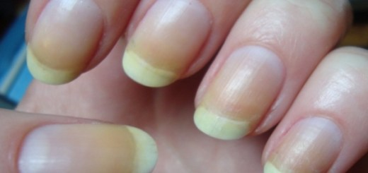 Yellow Stains Nails