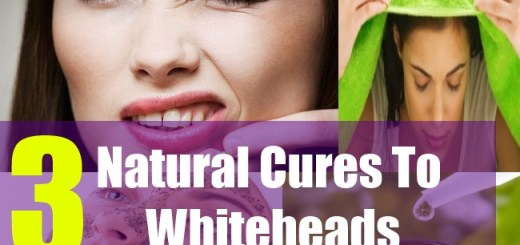 3 Natural Cures To Whiteheads