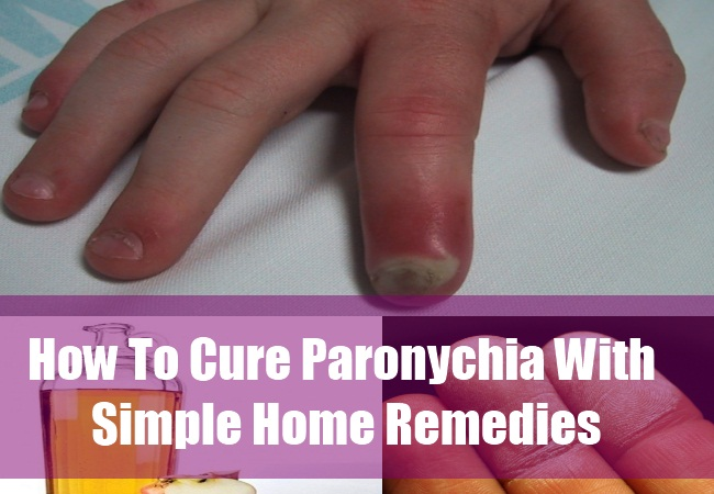 Natural Remedy For Infection In Finger