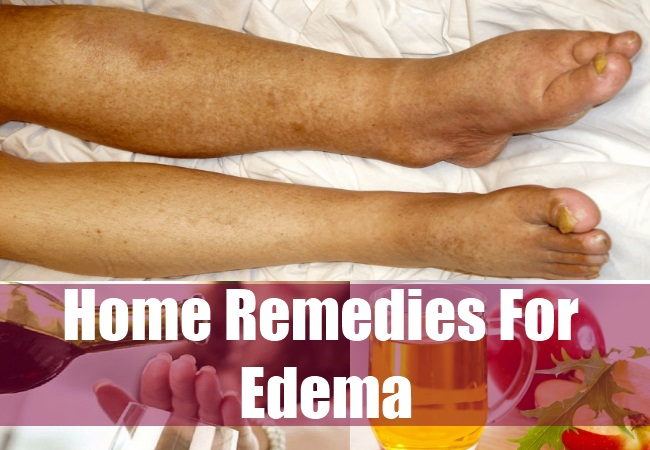 Cure Edema with these Natural Treatments and Home Remedies
