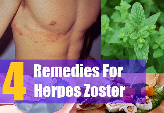 Natural Remedies To Cure Herpes Zoster