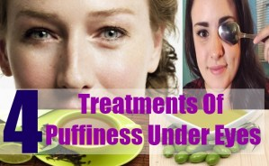 4 Treatments Of Puffiness Under Eyes