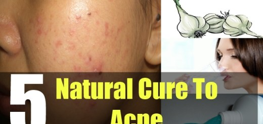 5 Natural Cure To Acne