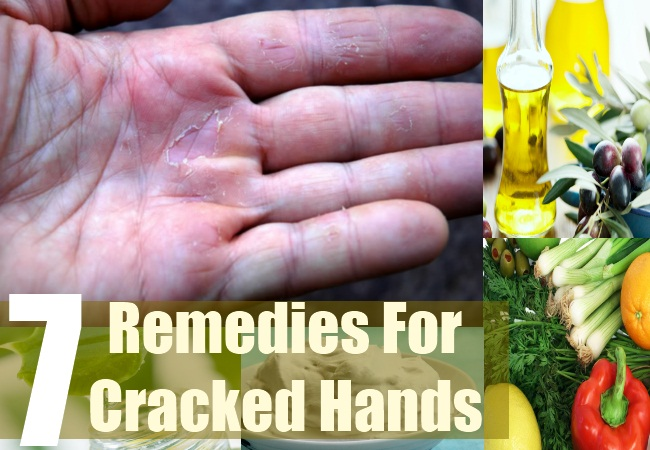 7 Remedies For Cracked Hands