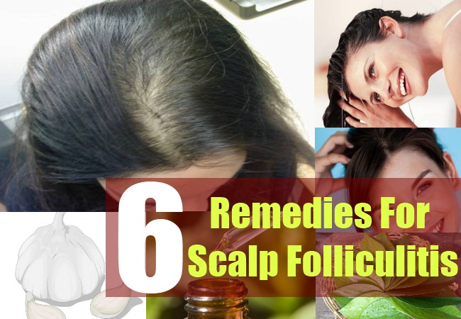 How To Get Rid Of Fungal Infection On Scalp Naturally