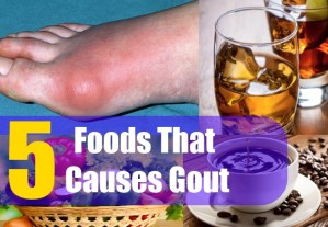 5 Foods That Causes Gout