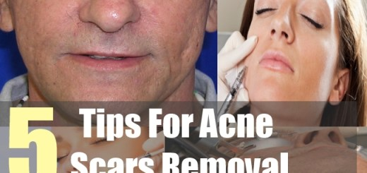 5 Tips For Acne Scars Removal
