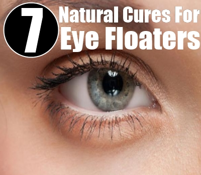 7 Natural Cures For Eye Floaters