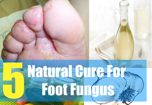 5 Natural Cure For Foot Fungus