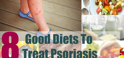 8 Good Diets To Treat Psoriasis