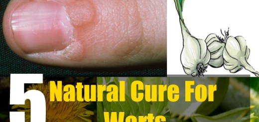 5 Natural Cure For Warts