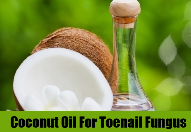 how to get rid of toe fungus with vinegar