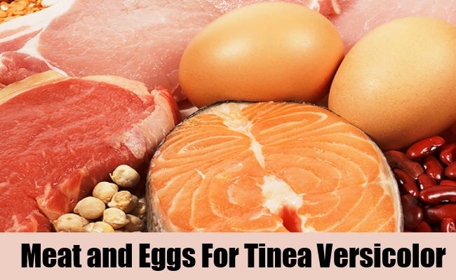 Meat and Eggs For Tinea Versicolor