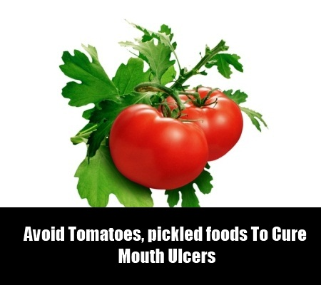 Foods To Avoid When Having Ulcers