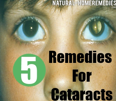 Best Home Remedies For Cataracts