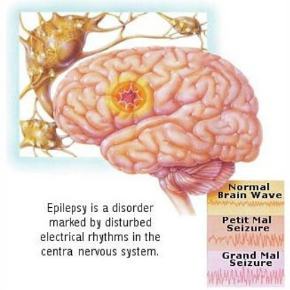 Natural Cures For Epilepsy