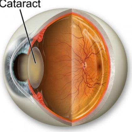 Seven Effective Natural Cures For Cataract