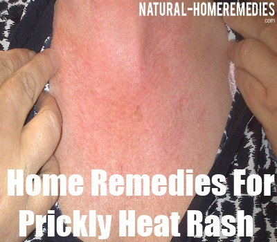 Prickly Heat Rash