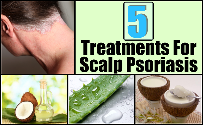 how to prevent psoriasis on scalp