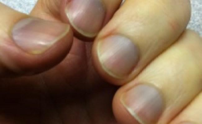 Best Remedies For Blue Fingernails Blue Fingernails Treatment Natural Home Remedies