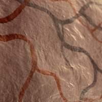 Remedios para la Trombosis Venosa